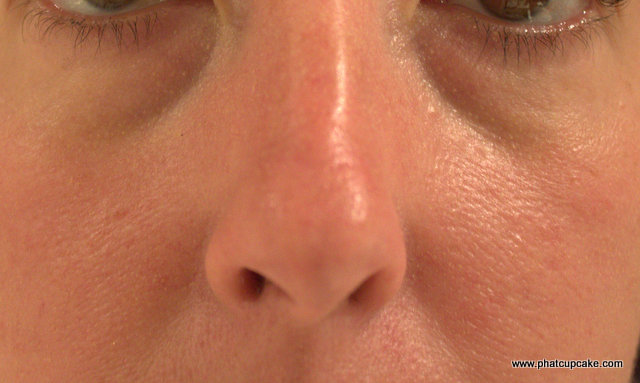 how to fix dry skin on nose